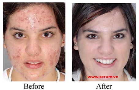 Serum trị mụn, serum trị nám cho làn da đẹp không tì vết
