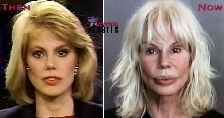Bree Walker Plastic Surgery Gone Wrong Before And After