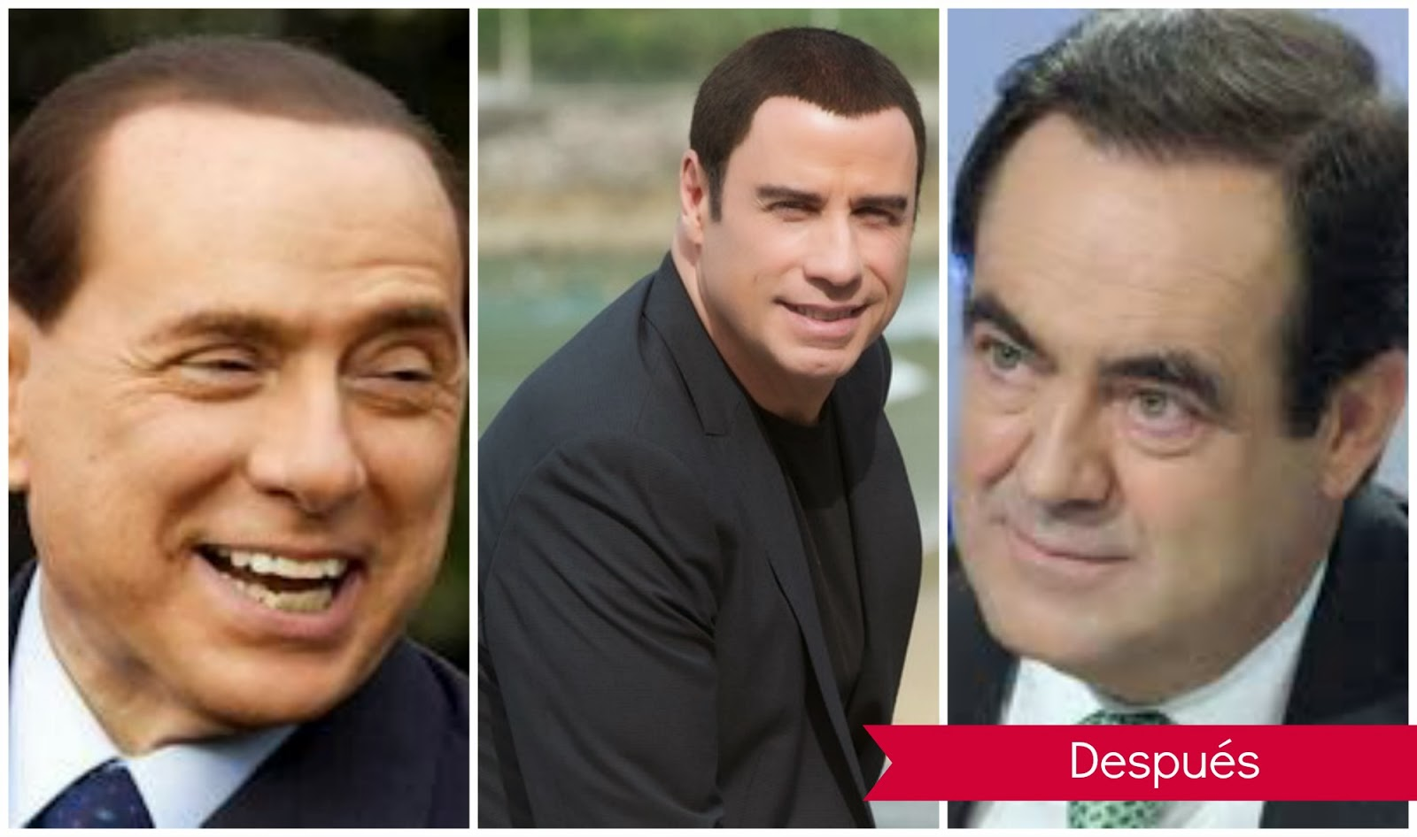 implantes y trasplantes capilares: Silvio Berlusconi, John Travolta, José Bono