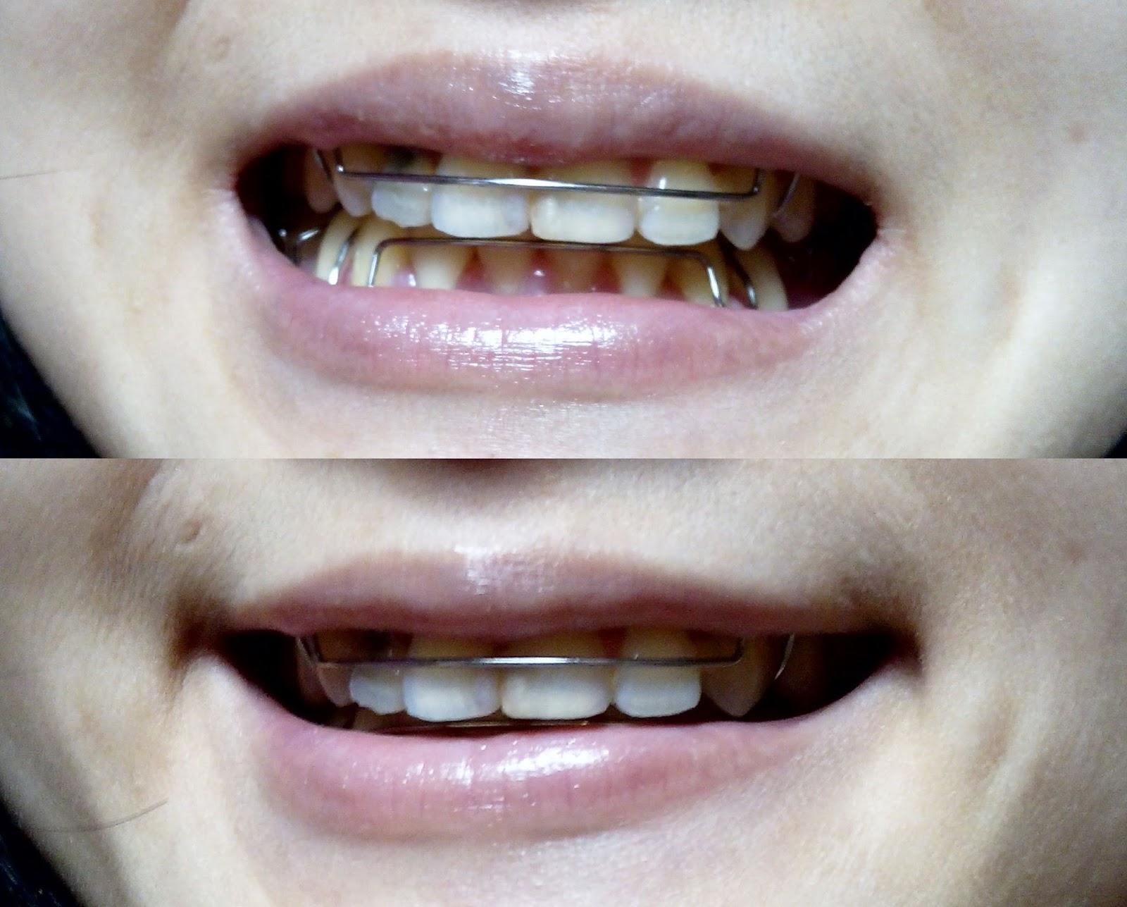 pasang behel di Surabaya, pasang behel bagus di Surabaya, dokter ortodontis Surabaya, Pengalaman pasang behel