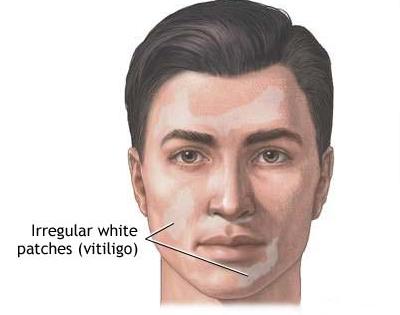 Gejala Umum Penyakit Vitiligo
