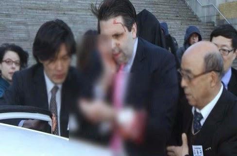 عاجل: شاهد ماذا حدث للسفير الأمريكى فجر اليوم بكوريا الجنوبية