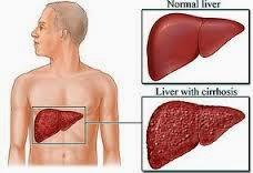 shaklee, hepatitis B, cirrhosis