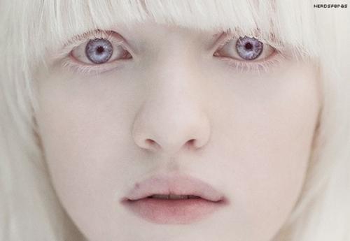 Albinismo: O que é, e como é causado.