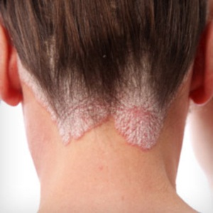 Herbal Remedies For Psoriasis
