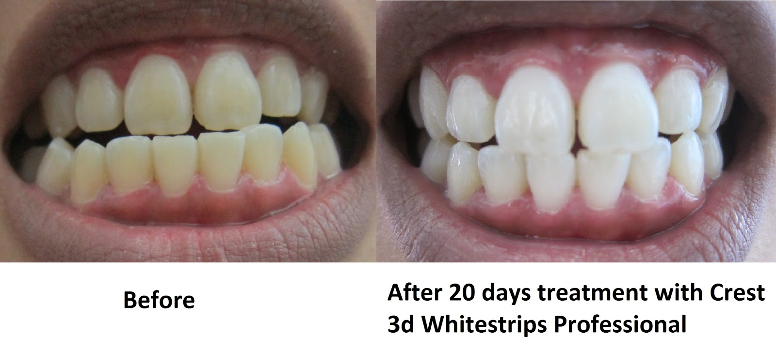 Crest 3D White Malaysia: Crest 3D White Professional Effects