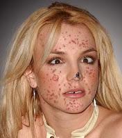 zits acne stars