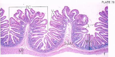 According2Robyn: Digestive System, Part 7: The Ileum