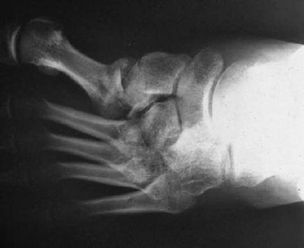Le coussin orthopédique à cervical osteokhondroze les images