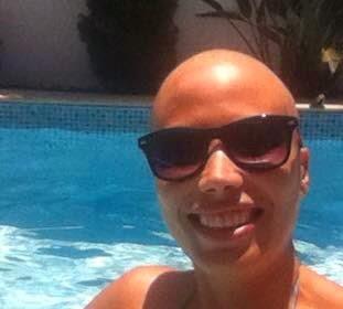 quimioterapia e o sol