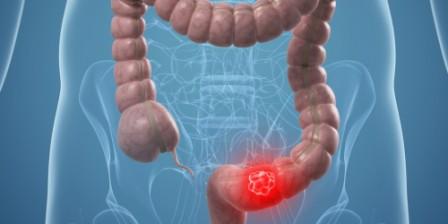 Test de ADN para detectar el cáncer de colon