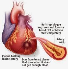 Obat Penyempitan Pembuluh Jantung