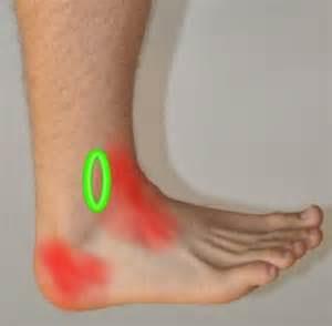 neuropathy symptoms legs