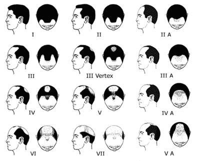 [Imagem: alopecia.jpg]