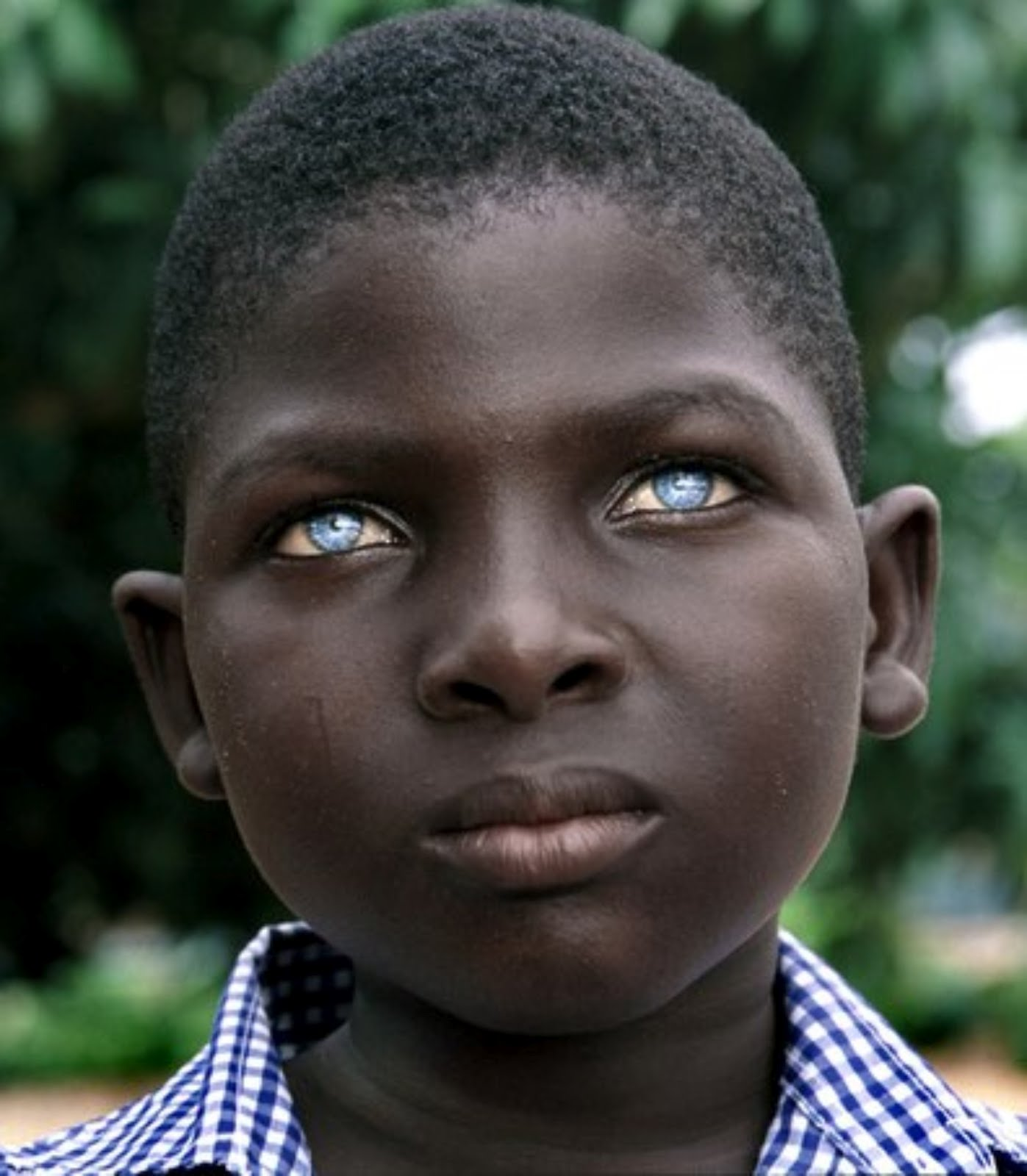 Black people with blue eyes