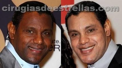 Sammy Sosa antes y despues