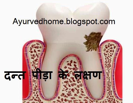 Symptoms of Dental Pain