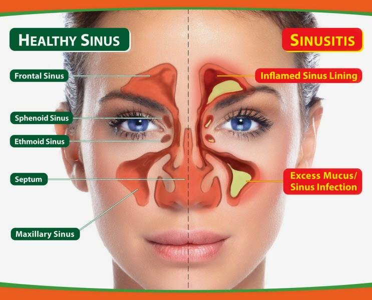 SINUSITIS TREATMENT & CARE