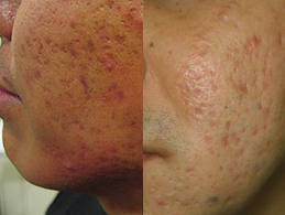 macule acne - photo #39