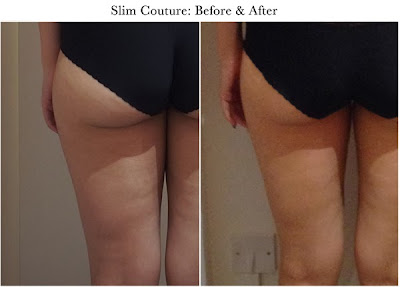 Slim Couture TCM Slimming