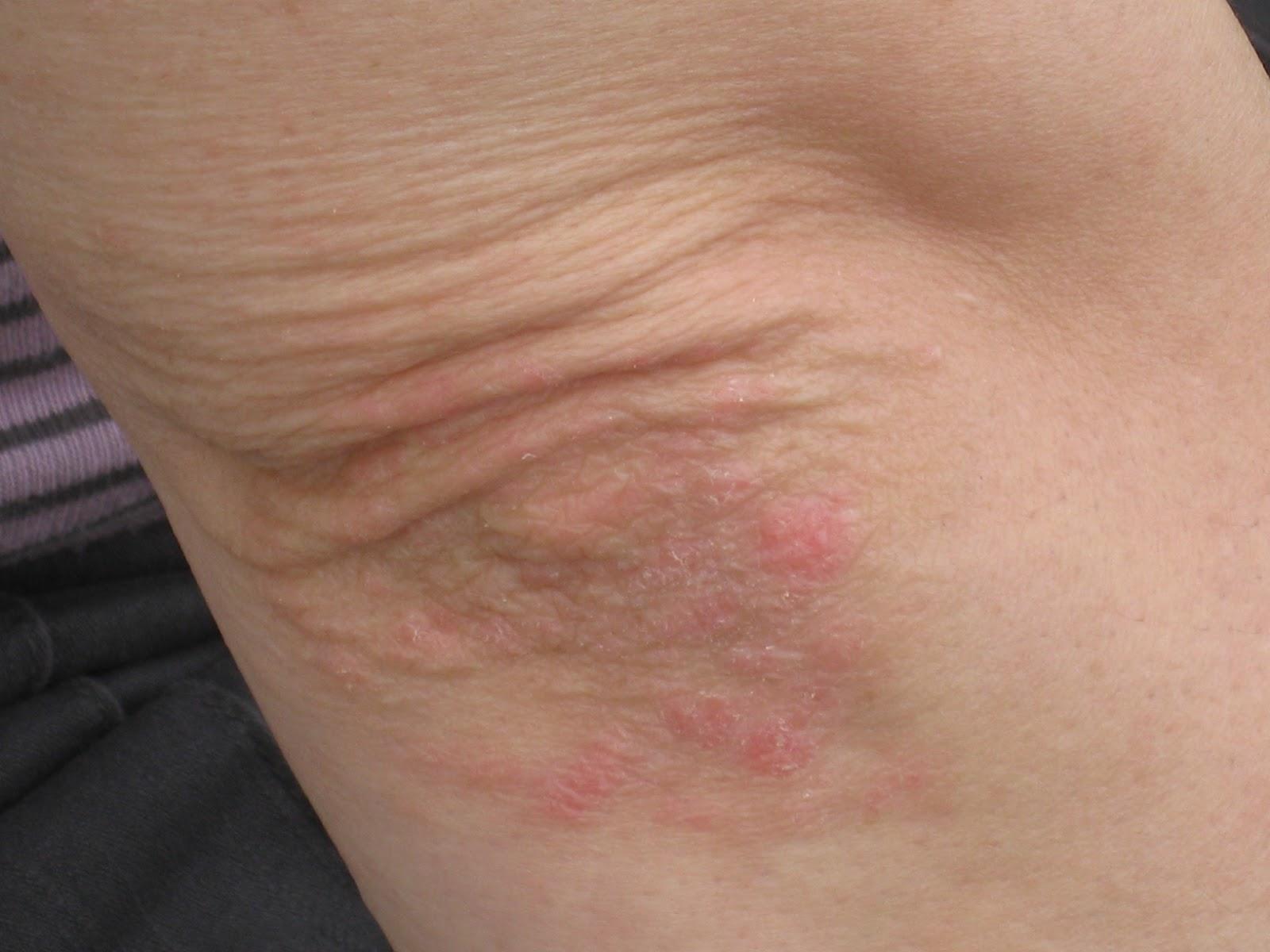 Sur le principal atopitchesky la dermatite de vidéo