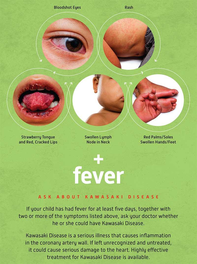 Kawasaki Disease Fever  Days