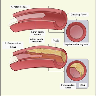 Laporan Pendahuluan Askep Arteriosklerosis