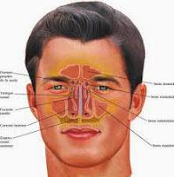 Cara Tradisional Sembuhkan Penyakit Sinusitis