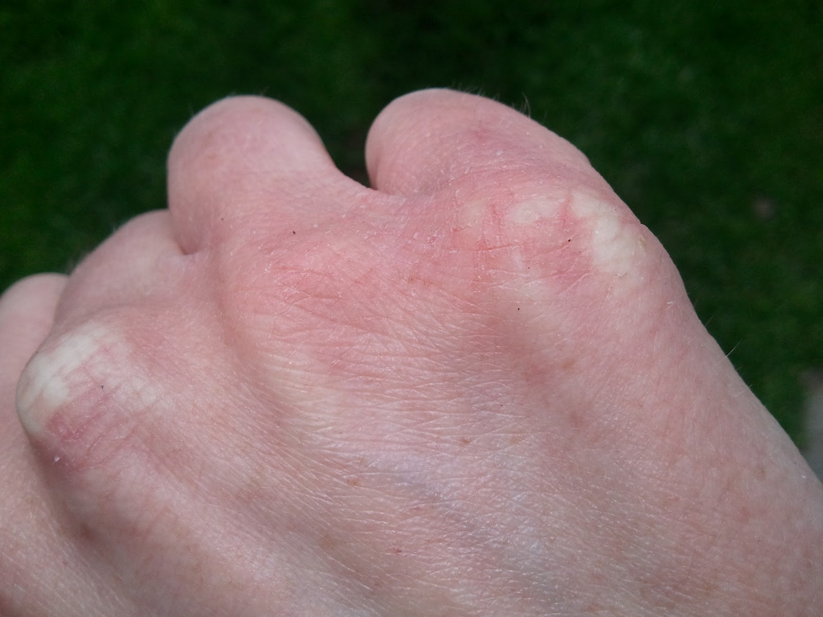 I have small little spots on my fingers that are like dry ...
