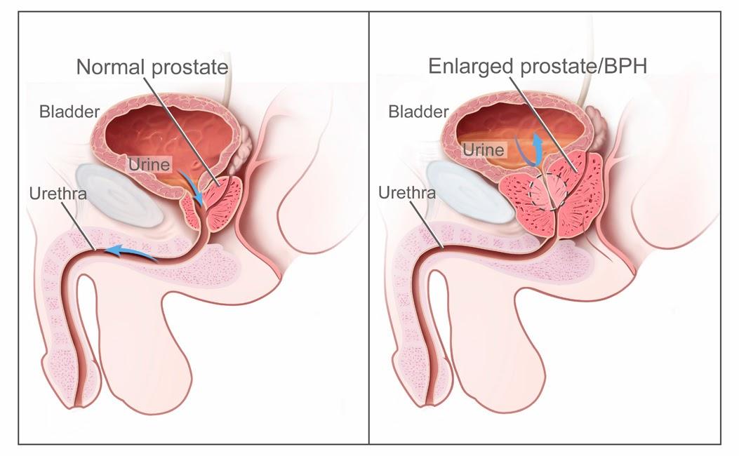 La osteocondrosis cruje en las articulaciones
