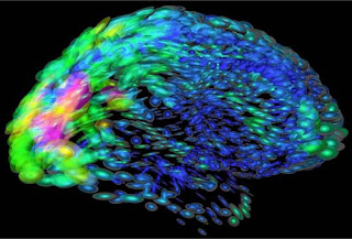 Mayo Brain Map Indicates Alzheimer's Patients Are Different