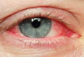 obat mata merah | kesehatan mata