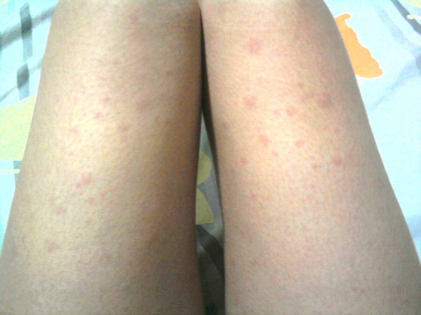 What Are the Causes, Symptoms and Treatment for Hives?