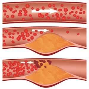 kawal kolestrol