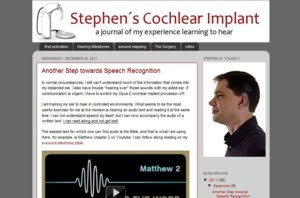 Stephen&#39;s Cochlear Implant