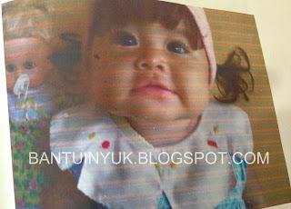 bayi yang mendeita leukimia