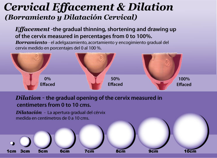 effacement is basically the thinning of the cervix and dilation is the ...
