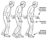 Clinical Manifestations of Parkinson's Disease