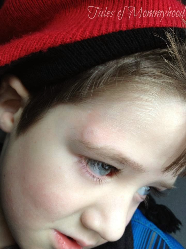 head injury, concussion in kids