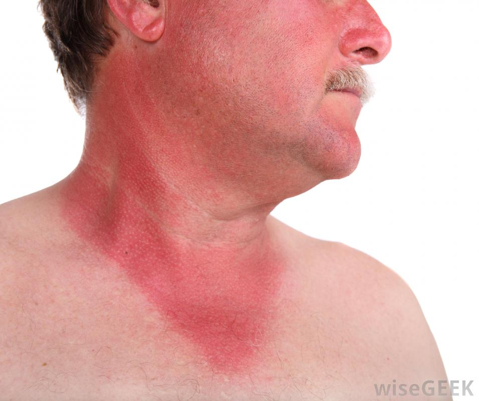 how to turn a sunburn into a tan with vinegar
