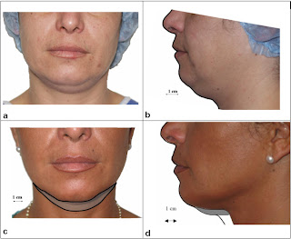 lipolisis laser rostro