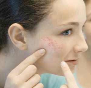 2 Cara Menghilangkan Jerawat Dan Merawat Pada Kulit Wajak Secara Alami