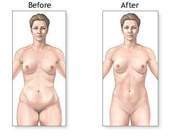 liposuction before and after results performed at affordable prices by best cosmetic plastic surgeon india kolkata