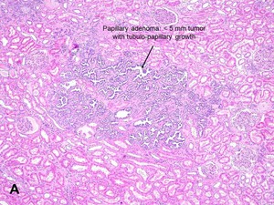 Carcinoma cell essay finding incidental renal
