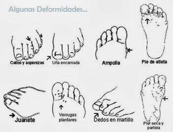 algunas deformaciones en pie diabetico