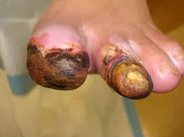 Diabetic toes