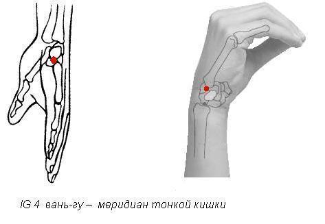 лечение остеоартроза лучезапястных суставов