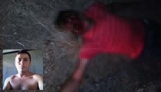Sem capacete; Jovem sofre grave acidente em Coronel Ezequiel