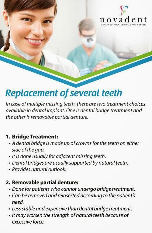 teeth implants in india