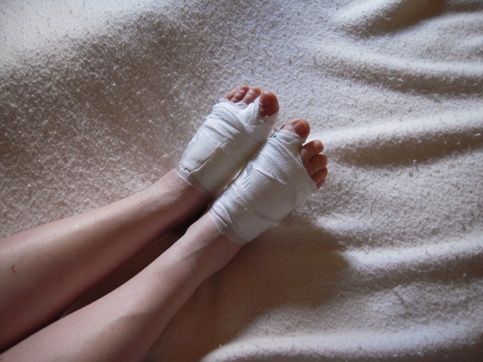 Houston podiatrist discusses bunion surgery on both feet